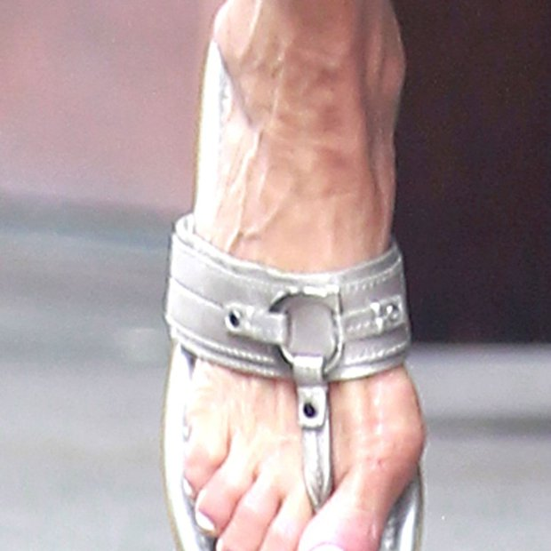 Zvezdniška stopala, ki kažejo sledi dolgoletnega trpinčenja!