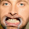 Takšno je trenutno  stanje Tomaževih  zob.