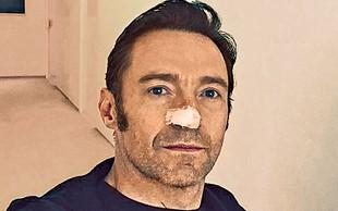 Hugh Jackman je že šestič zbolel za rakom