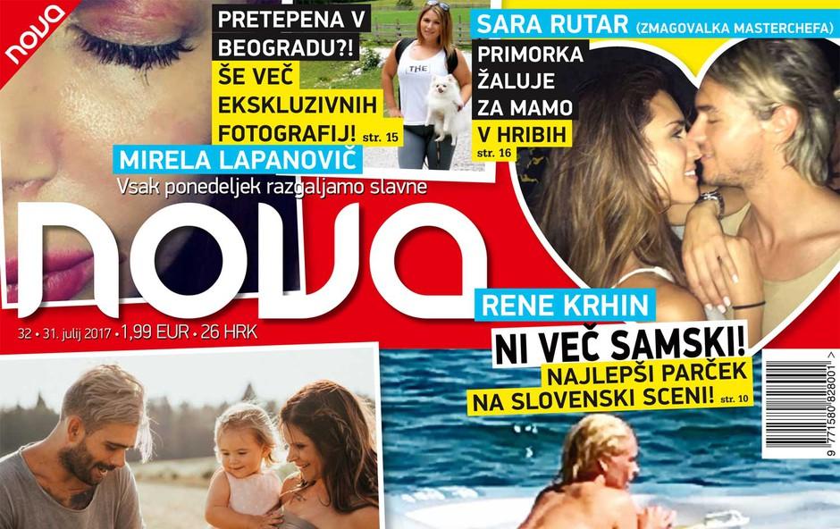 Špela Grošelj zgoraj brez! Več v novi Novi! (foto: Nova)