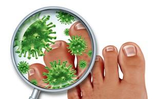 Nad glivično okužbo nohtov s preventivo!