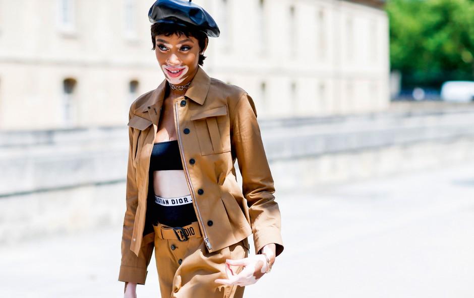 Manekenka Winnie Harlow ne želi biti vzornica (foto: Profimedia)