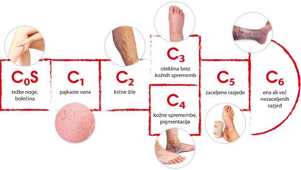 Kronična venska bolezen - pomembno je preprečiti njeno napredovanje (foto: Shutterstock)