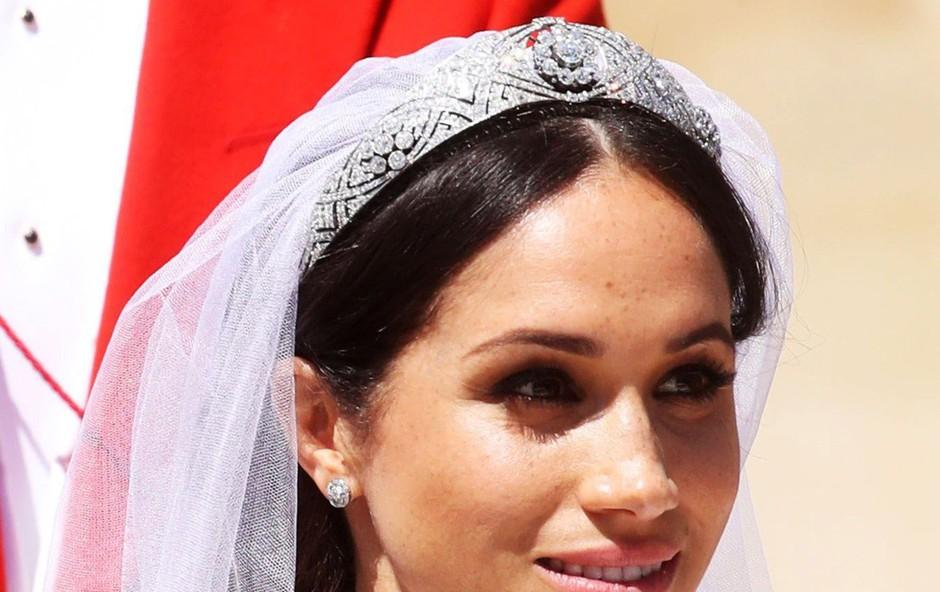 Kraljeva poroka in novi trendi: Zaradi Meghan ženske začenjajo sprejemati svoje sončne pege (foto: Profimedia)