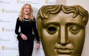 Nicole Kidman za novo vlogo povsem izmučena, postarana in čisto spremenjena