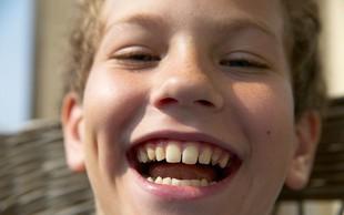 Razlaga sanj: Zobje so znamenje za razmišljanje in skrb za lep videz!