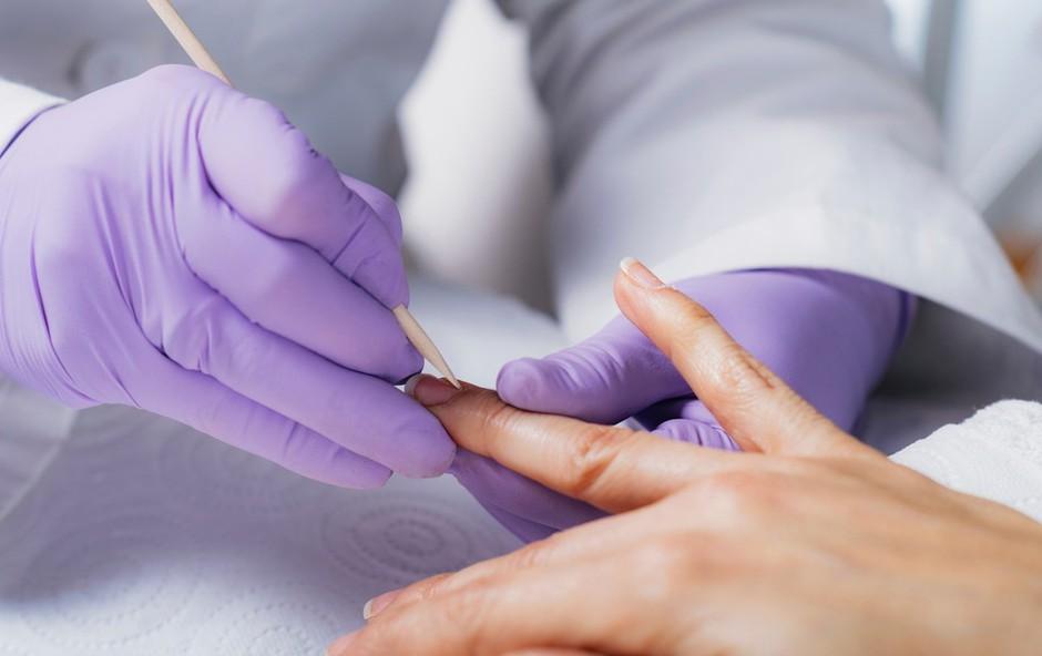 Američanka zaradi manikure skoraj ostala brez roke: okužila se je z nevarno bakterijo (foto: Profimedia)