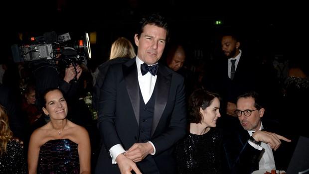 Tom Cruise presenetil: Je za njegovo obrazno mimiko kriv botoks? (foto: Profimedia)