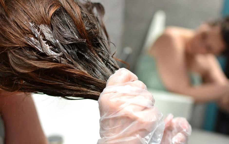 Si lase barvate doma? Potem vas bodo navdušili triki za odstranjevanje madežev barve s kože (foto: Profimedia)