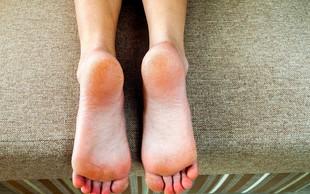 Imate na nogah trdo kožo? To je lahko posledica obremenjujočega odnosa z materjo
