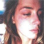 Fotografija, s katero je Amber Heard na sodišču v Los Angelesu dokazovala fizični napad, Johnny Depp pa je potem dobil sodno prepoved približevanja. Ločitev je sledila 2 dni kasneje. (foto: Foto: Profimedia)